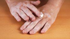 Лечение витилиго. Народные средства от болезней кожи