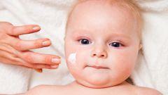 Сухая кожа у ребенка - лечение и профилактика