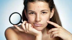 Что поможет добиться чистой кожи без угревой сыпи?