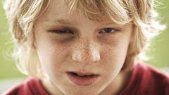 Как реагировать, если сын пришел домой с синяками?