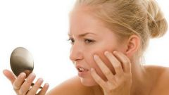 Как избавиться от шелушения кожи в домашних условиях