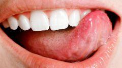 Как лечить типун на языке