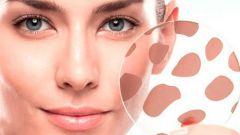 Гиперпигментация кожи: причины и лечение в домашних условиях