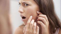 Как избавиться от постакне на лице