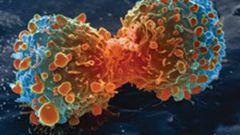 Рак с точки зрения Аюрведы