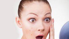 Акне – не приговор: симптомы и способы борьбы с недугом