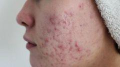 Демодекоз кожи лица