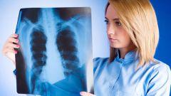 Можно ли заразиться туберкулезом через пищу