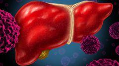 Гепатит С: сколько с ним живут, последствия