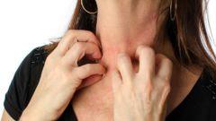 Как избавиться от зуда кожи в домашних условиях