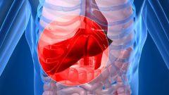 Как лечить холангит - болезнь желчных протоков