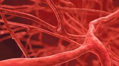 Системный васкулит: симптомы и лечение
