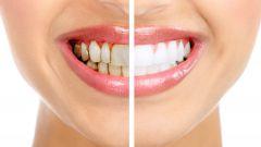 Что такое зубной налет и чем он опасен