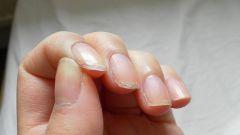 Почему слоятся ногти и что с этим делать