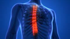 Деформирующий спондилез грудного отдела позвоночника: симптомы, лечение