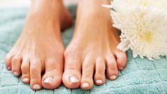 Почему сильно потеют ноги