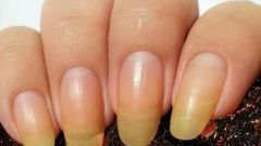 Почему желтеют ногти на руках