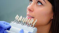Описание плюсов и минусов имплантов зубов