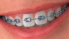 Какими бывают брекеты для лечения детских зубов