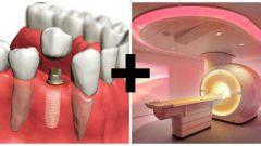 Можно ли делать МРТ с имплантами зубов