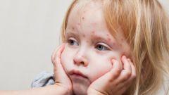 Как облегчить симптомы ветрянки у ребенка