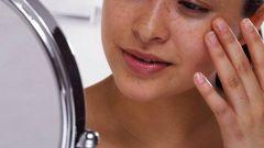Причины и способы устранения отеков на лице