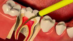 Должен ли болеть зуб после лечения каналов