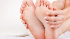 Трещины на пятках: причины и лечение в домашних условиях