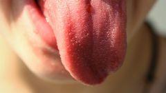 Как выявить болезнь по языку