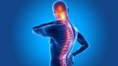Болезнь Бехтерева (Анкилозирующий спондилит): причины, симптомы, профилактика