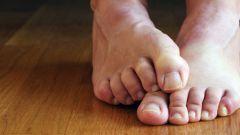 Как лечить грибок стопы в домашних условиях народными средствами