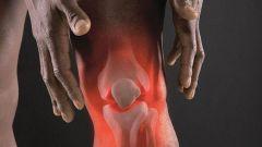 Как вовремя распознать приближающийся артрит