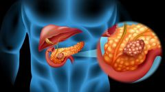 Симптомы и проявление рака поджелудочной железы