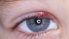 Ячмень: что это такое, симптомы, причины, лечение болезни