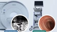 Что лучше: МРТ кишечника или колоноскопия
