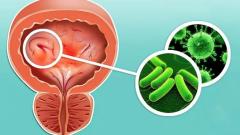 Геморрагический цистит: симптомы, причины, как лечить, осоложнения