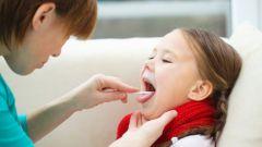Симптомы, лечение и профилактика скарлатины у детей