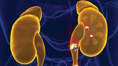 Мочекаменная болезнь: симптомы и лечение у женщин и мужчин