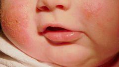 Атопический дерматит у детей: лечение