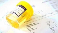 Бактерии в моче у женщин: причины и лечение