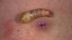 Личинка овода в человеке: симптомы, последствия, удаление