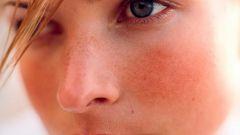 Как предотвратить купероз на лице