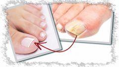 Как лечить грибок ногтей просто и эффективно
