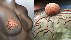 Рак молочной железы: продолжительность жизни при раке 1, 2, 3, 4 степени