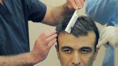 Методы пересадки волос: как обрести шикарную прическу