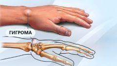 Гигрома кисти руки: причины возникновения, лечение