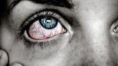 Как бороться с конъюнктивитом и воспалением глаз