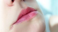 Лечение трещин в углу рта
