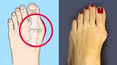 Как избавиться от косточки на ноге в домашних условиях