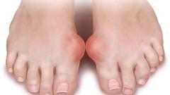 Бурсит большого пальца ноги: лечение, профилактика
